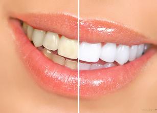 牙齿美白都有哪些方法