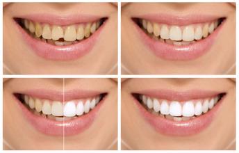 牙齿美白需要注意什么